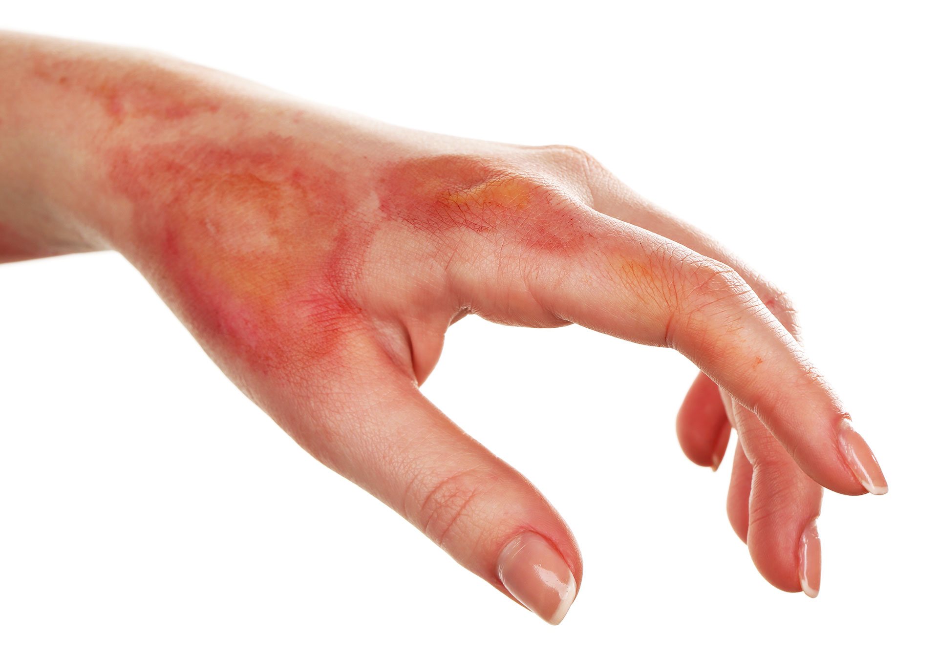 Workplace Burn Injury